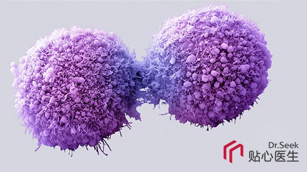 癌细胞检查